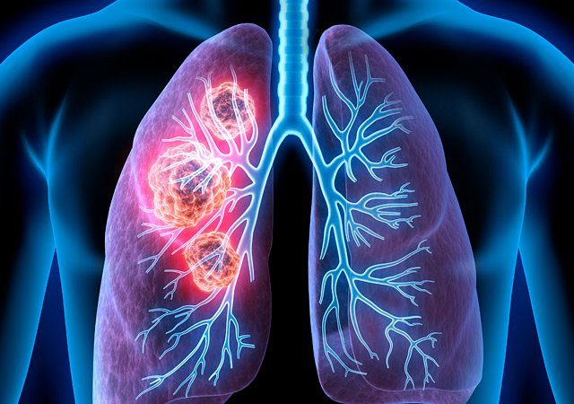 What to Know About Lung Cancer, Early Detection and Reducing the Risks